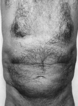 Self Portrait (Torso Front)